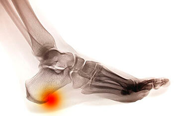 heel spur treatment in the Brooklyn, NY 11228 and Old Bridge, NJ 08857 area