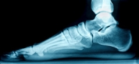 Causes of Flat Feet