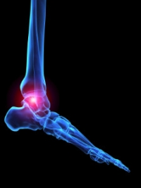 Psoriatic Arthritis Can Affect the Feet